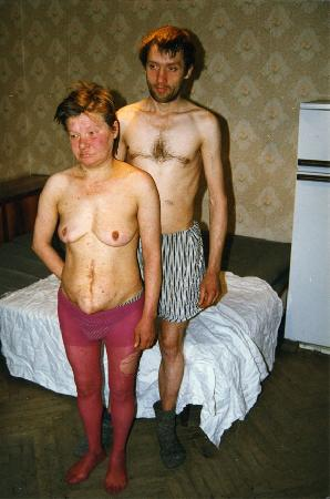 голых алкашек фото